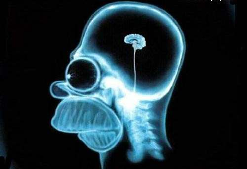 homer simpson x-ray imaging